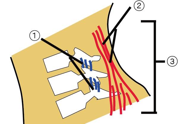 交通事故、むちうちの首損傷