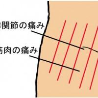 交通事故・むちうちによる股関節の痛み