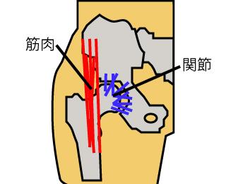 股関節イラスト